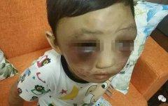 4岁男童常遭离婚妈妈毒打 逃出家求救(图)